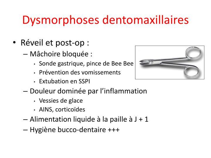 Dysmorphoses