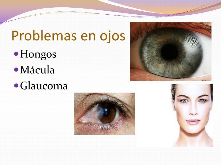 Problemas en ojos