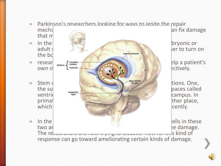 Parkinson's researchers
