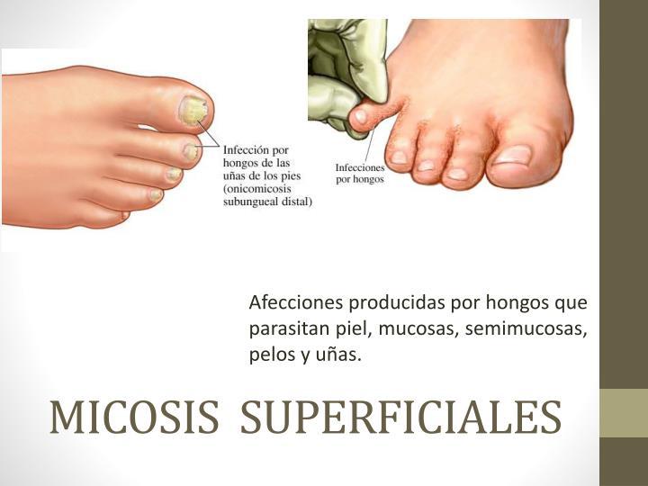 Afecciones producidas por hongos que