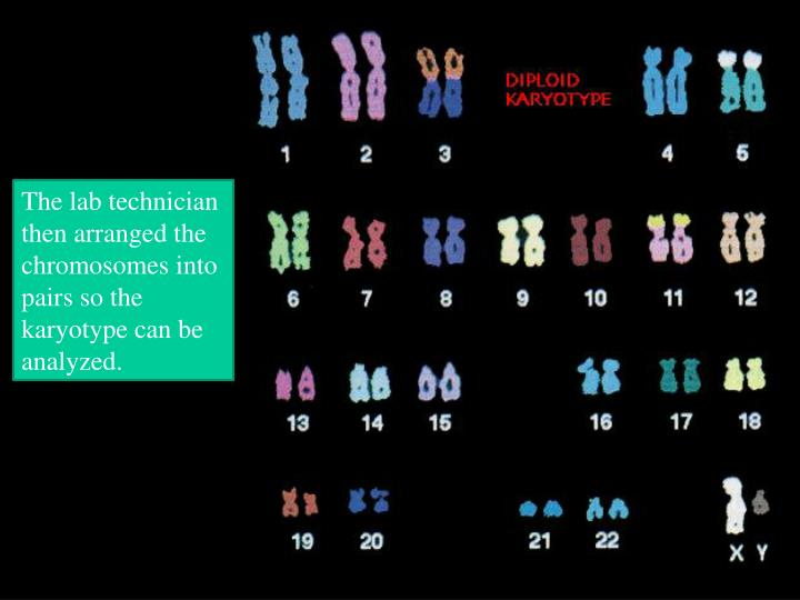 The lab technician then arranged the chromosomes into pairs so the karyotype can be analyzed.
