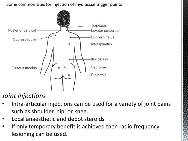 Some common sites for injection of
