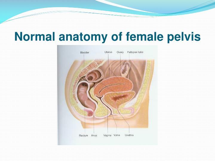 Normal anatomy of female pelvis