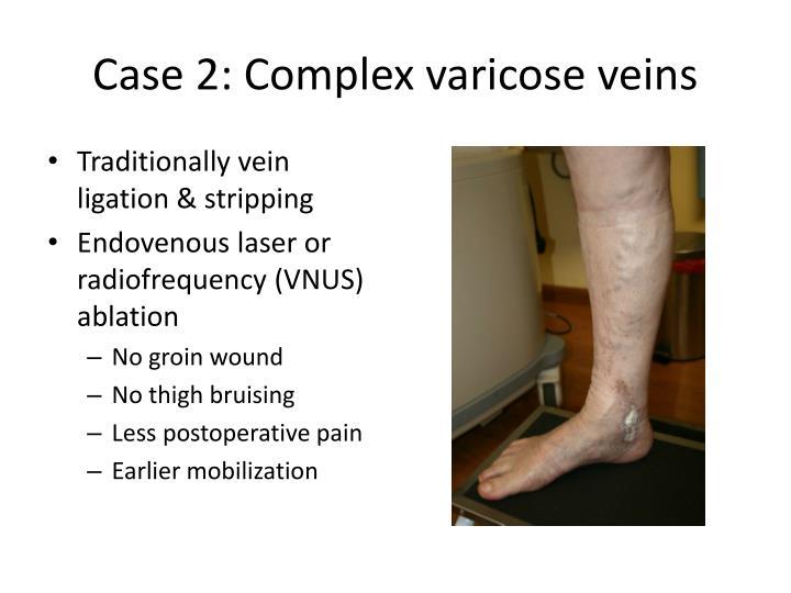 Case 2: Complex varicose veins