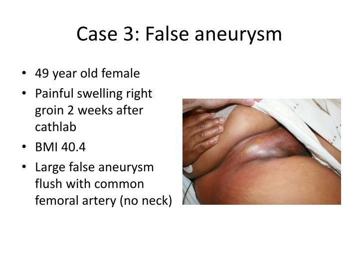 Case 3: False aneurysm
