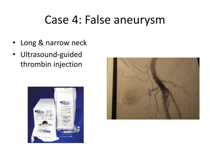 Case 4: False aneurysm