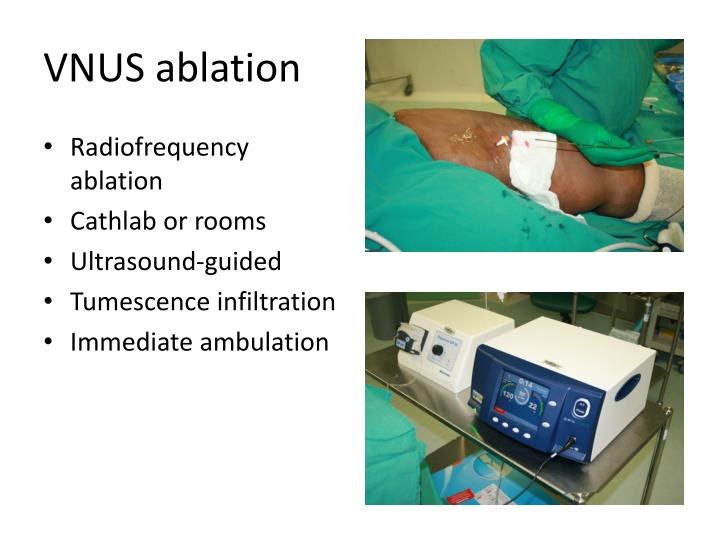 VNUS ablation