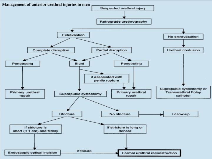 Management of anterior urethral injuries in men