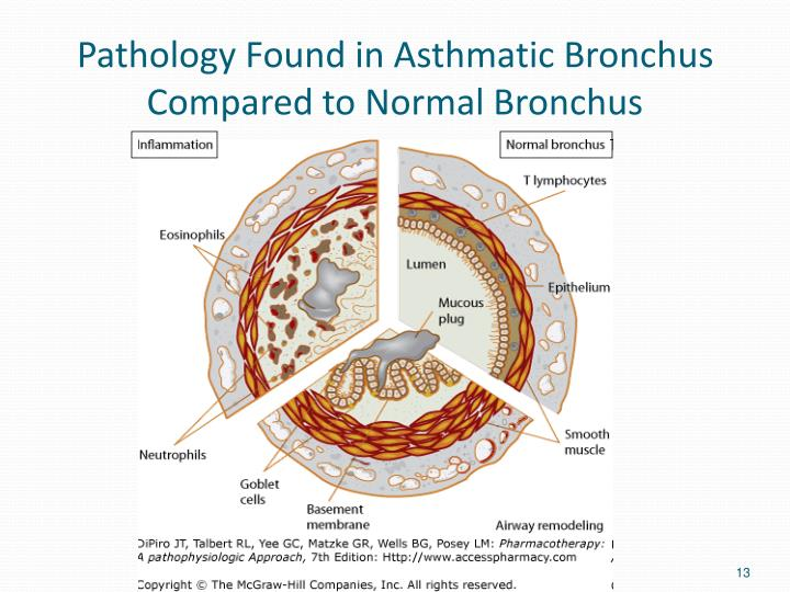 Pathology Found in Asthmatic Bronchus Compared to Normal Bronchus