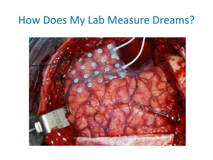 How Does My Lab Measure Dreams?
