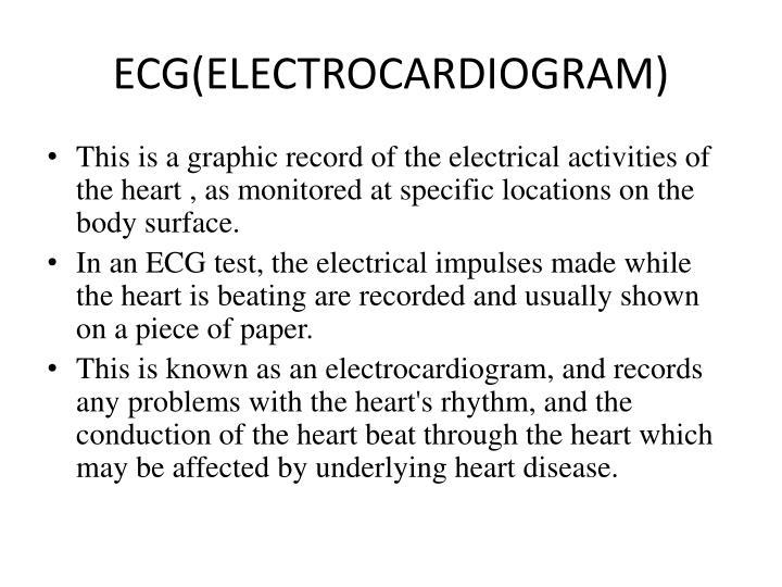 ECG(ELECTROCARDIOGRAM)