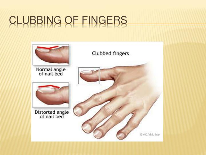 Clubbing of fingers