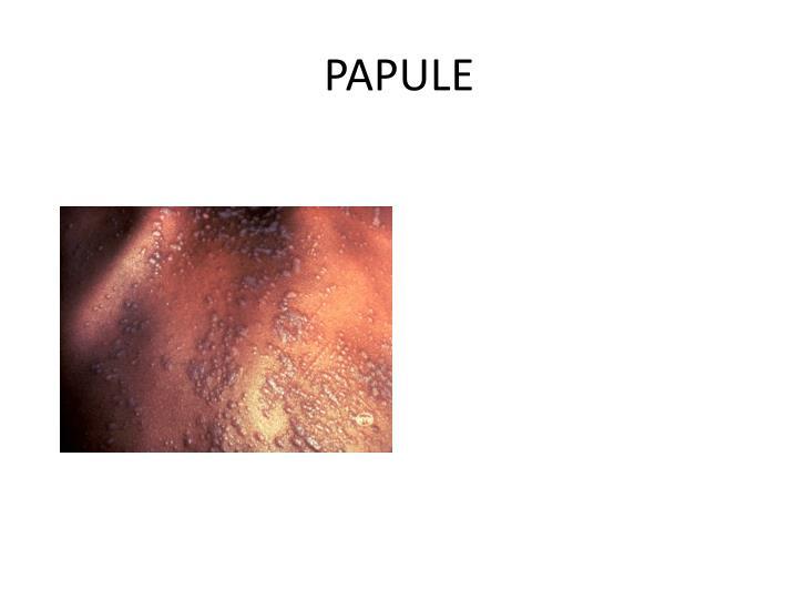 PAPULE