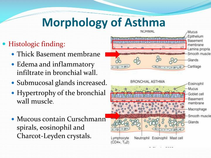 Morphology of Asthma