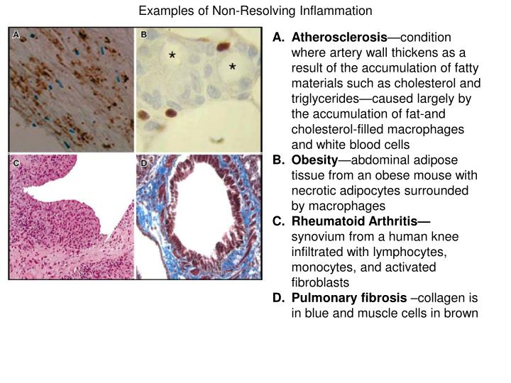 Examples of Non-Resolving Inflammation