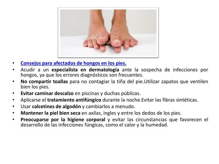 Consejos para afectados de hongos en los pies.
