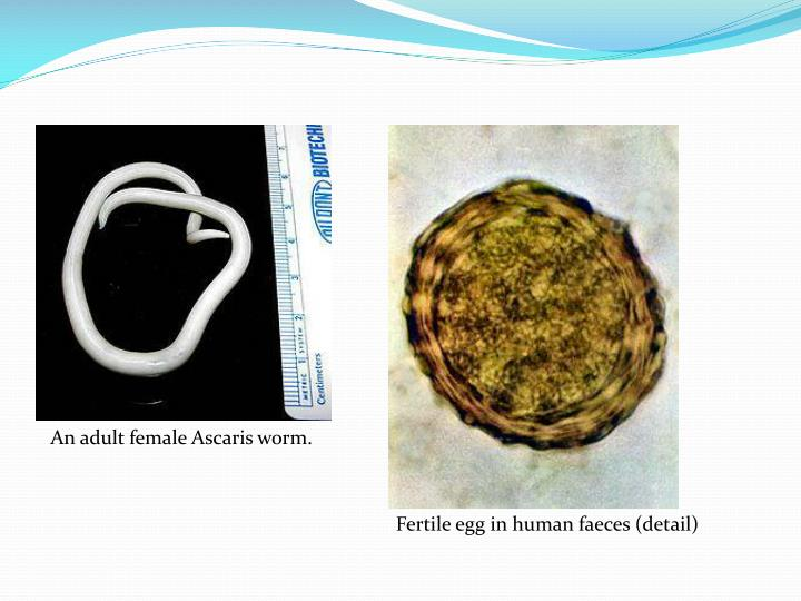 An adult female Ascaris worm.