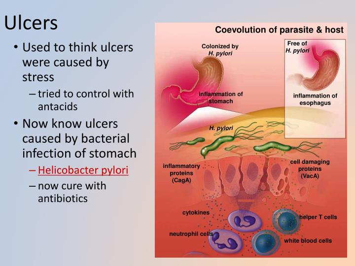 Ulcers