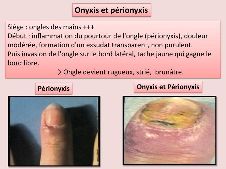 Onyxis et