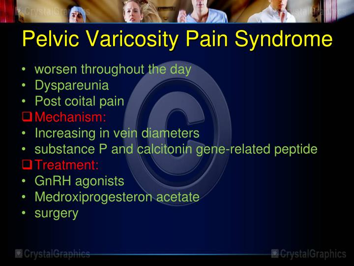Pelvic Varicosity Pain Syndrome