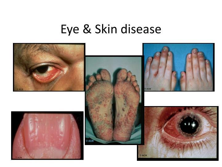 Eye & Skin disease