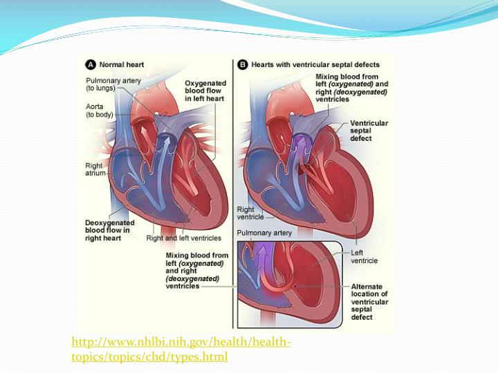 http://www.nhlbi.nih.gov/health/health-topics/topics/chd/types.html