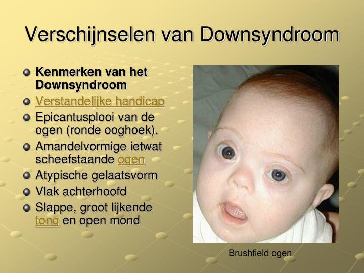 Kenmerken van het Downsyndroom