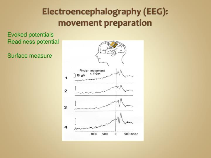 Electroencephalography (EEG): movement preparation