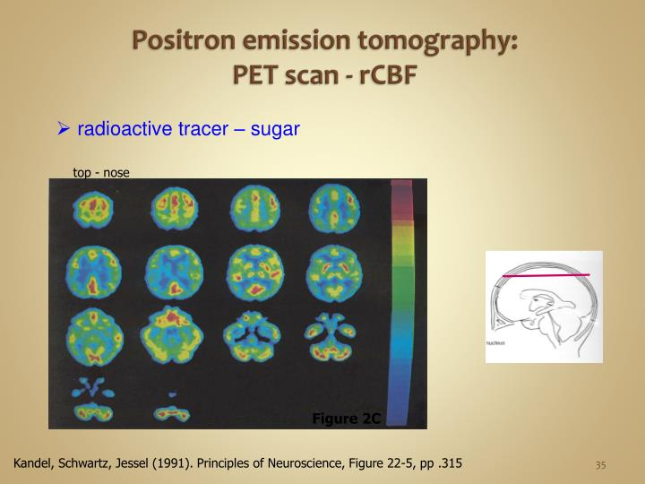 Positron emission tomography: