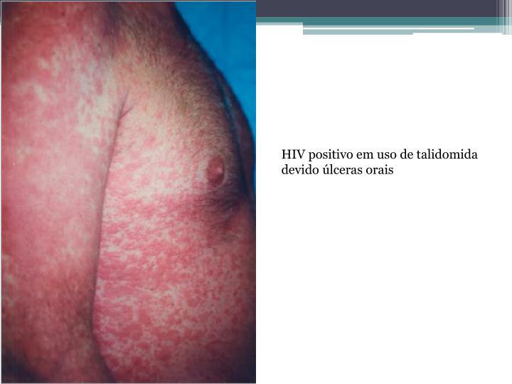 HIV positivo em uso de talidomida devido úlceras orais