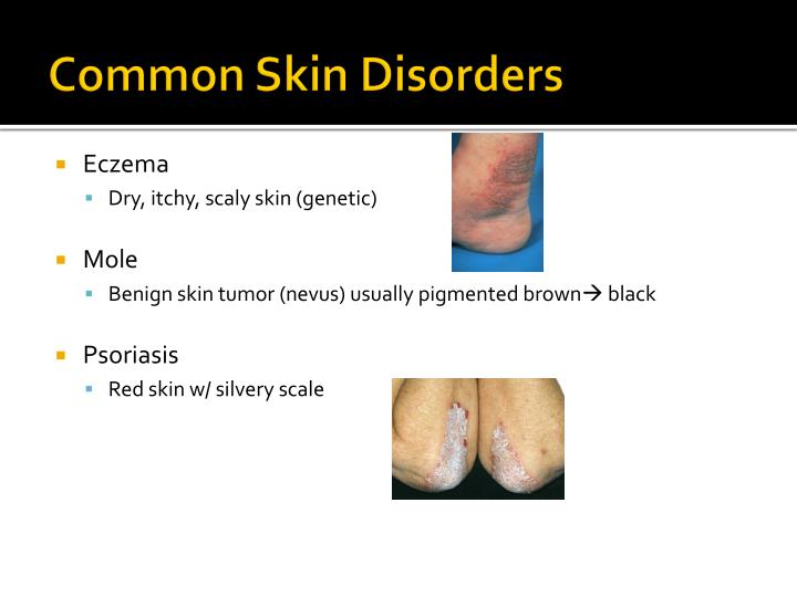 Common Skin Disorders
