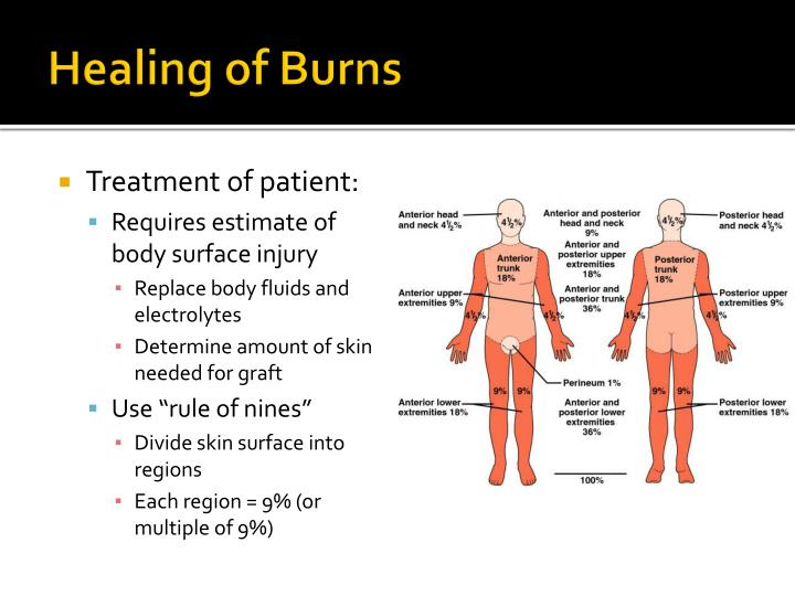 Healing of Burns