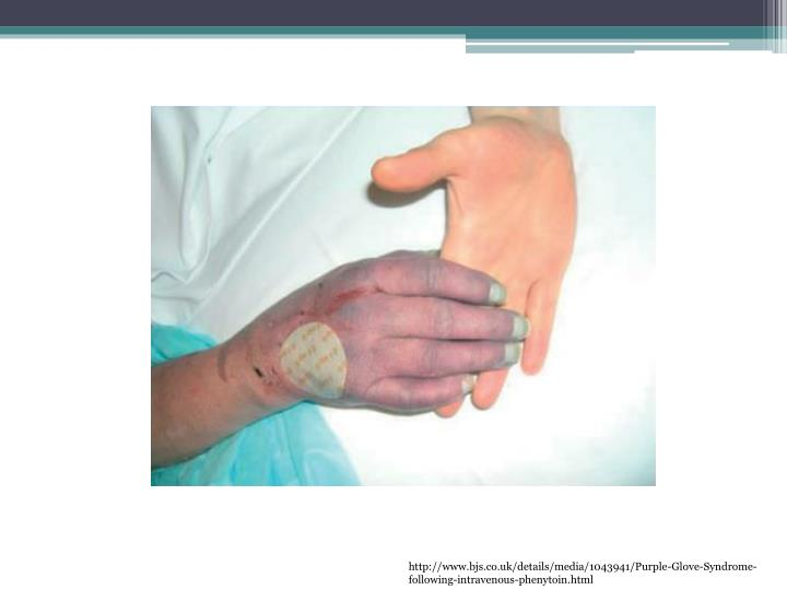 http://www.bjs.co.uk/details/media/1043941/Purple-Glove-Syndrome-following-intravenous-phenytoin.html