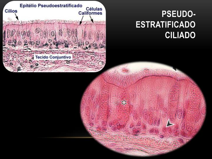 Pseudo-Estratificado