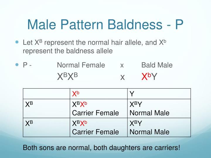 Male Pattern Baldness - P
