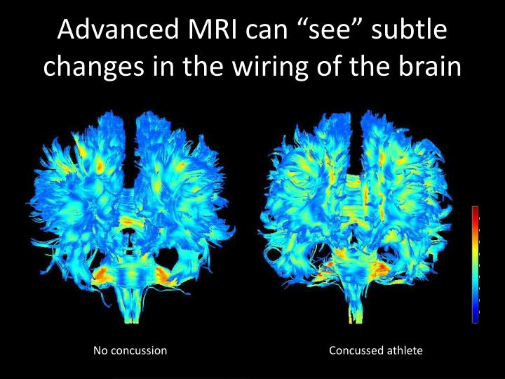 "Advanced MRI can ""see"" subtle changes in the wiring of the brain"