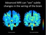advanced mri can see subtle changes in the wiring of the brain