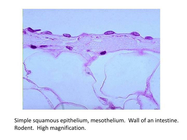 Simple squamous epithelium, mesothelium.  Wall of an intestine.