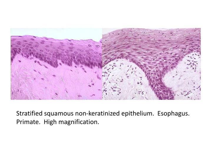 Stratified squamous non-keratinized epithelium.  Esophagus.