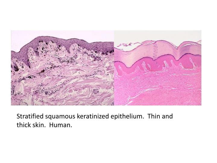 Stratified squamous keratinized epithelium.  Thin and