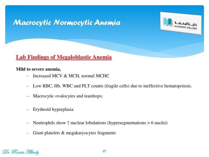 Macrocytic Normocytic Anemia