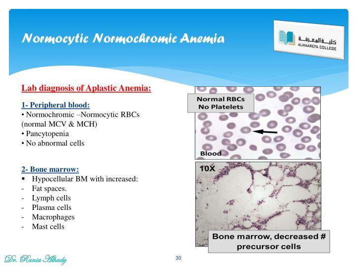 Normocytic Normochromic Anemia