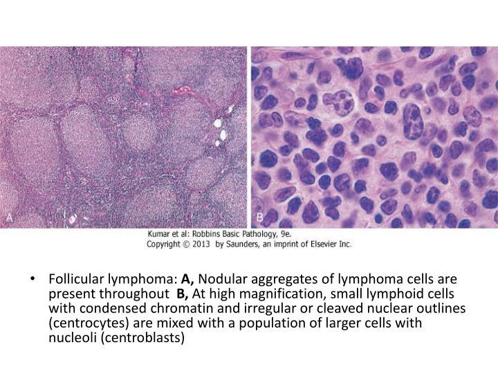 Follicular lymphoma: