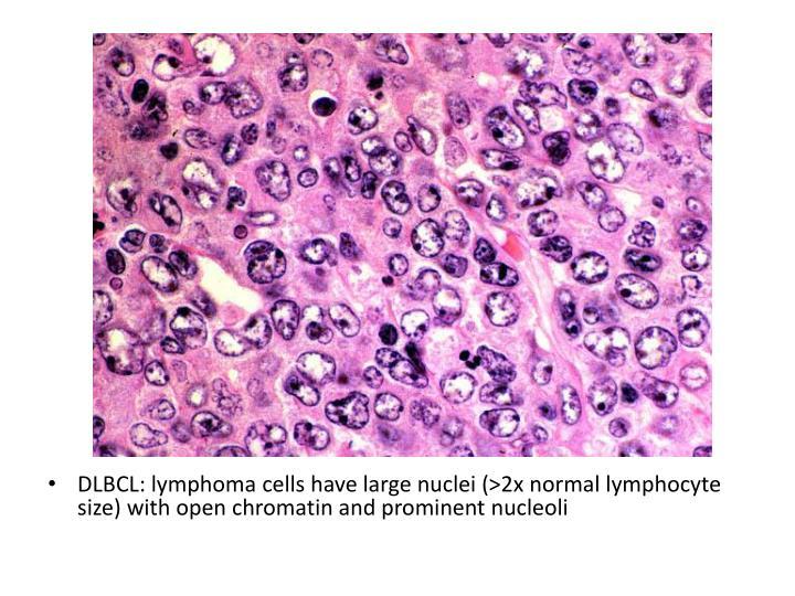DLBCL: lymphoma