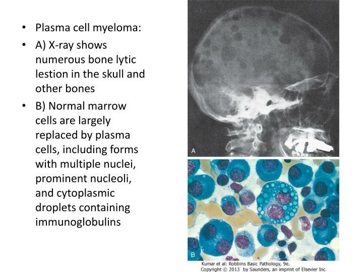 Plasma cell myeloma: