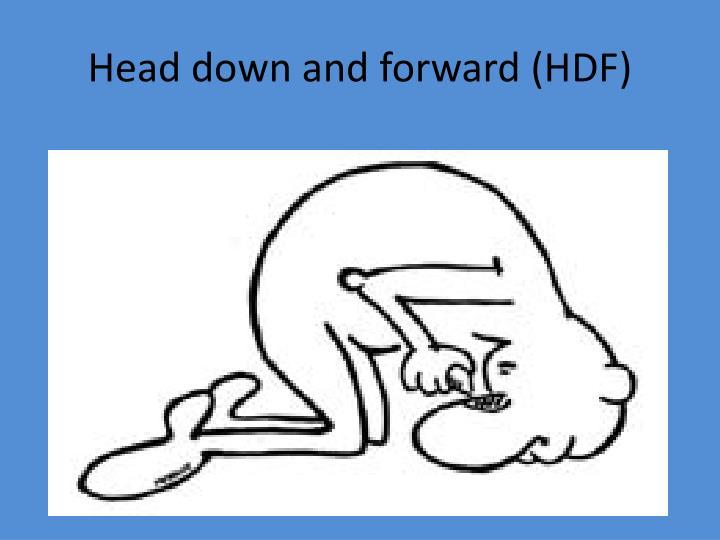 Head down and forward (HDF)