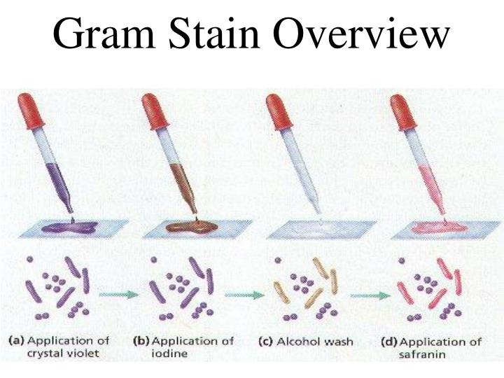 Gram Stain Overview