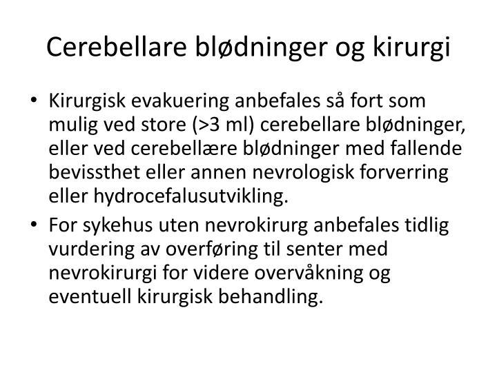 Cerebellare