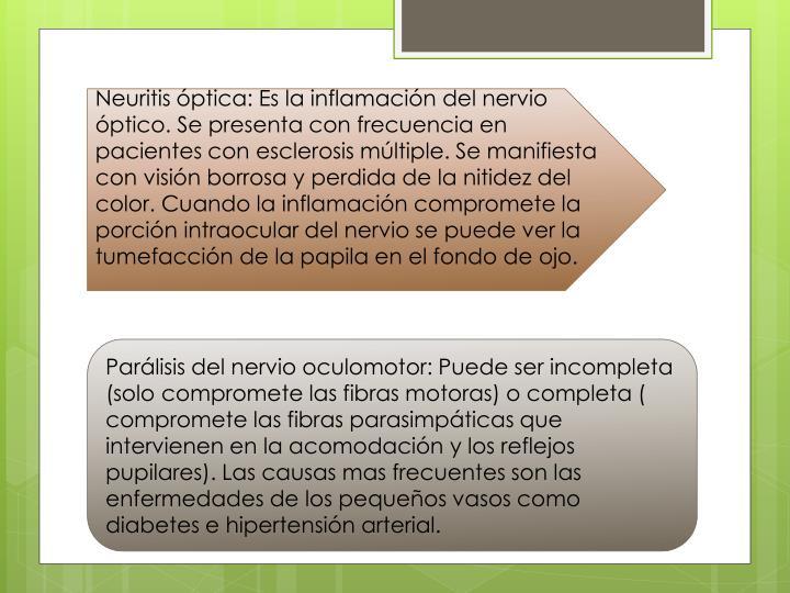 Neuritis óptica: Es la inflamación del nervio óptico. Se presenta con frecuencia en pacientes con esclerosis múltiple. Se manifiesta con visión borrosa y perdida de la nitidez del color. Cuando la inflamación compromete la porción intraocular del nervio se puede ver la tumefacción de la papila en el fondo de ojo.