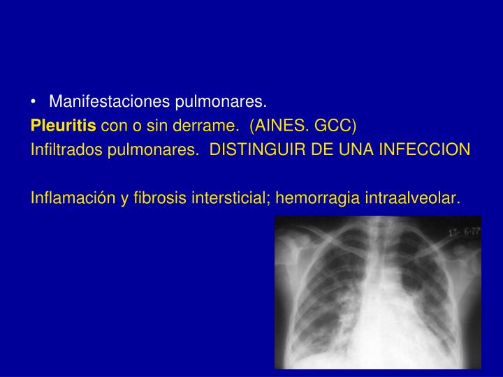 Manifestaciones pulmonares.